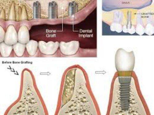 Quy trình nâng xoang hàm cấy ghép implant