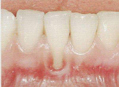 Nguyên nhân gây bệnh thiếu sản men răng