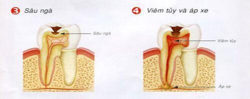 hậu quả và biến chứng của sâu răng