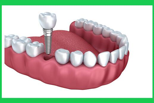 Viêm quanh Implant nguyên nhân và biện pháp phòng tránh