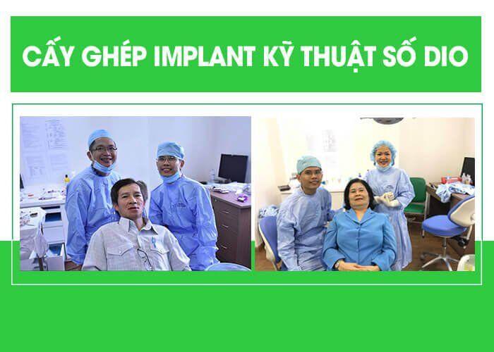lợi ích của trồng răng Implant