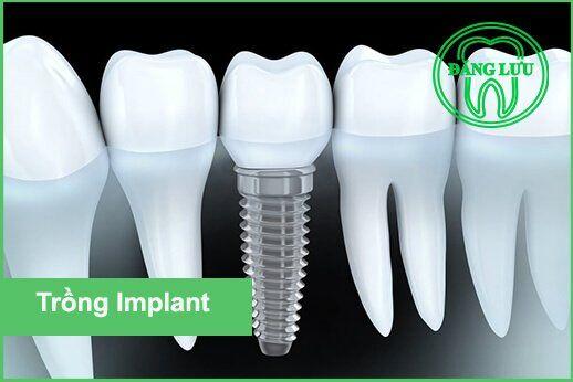 Implant osstem và một số trụ Implant được dùng phổ biến