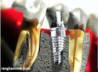 Implant nha khoa là gì ?