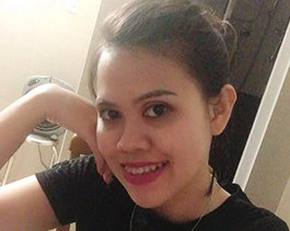 Niềng sớm đẹp sớm – Lời của cô gái 29 năm sống cùng hàm răng lệch lạc