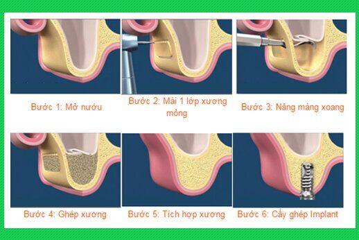 quy trình nâng xương