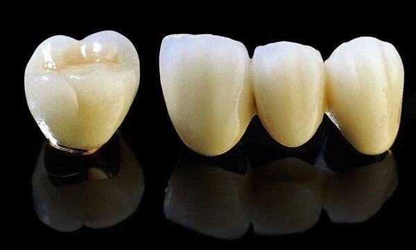Khi nào nên bọc răng sứ Titan?