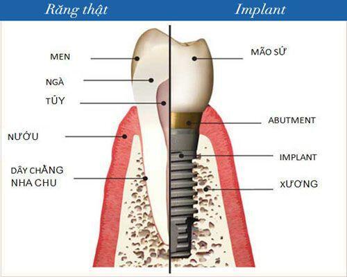 Làm cầu răng hay trồng răng Implant mất nhiều thời gian hơn?