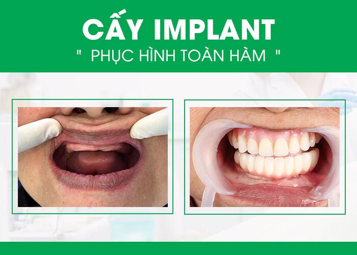làm răng giả nguyên hàm cố định