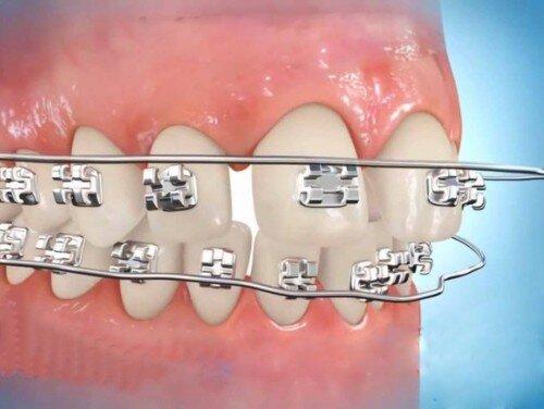 Niềng răng có bắt buộc phải nhổ răng không ?