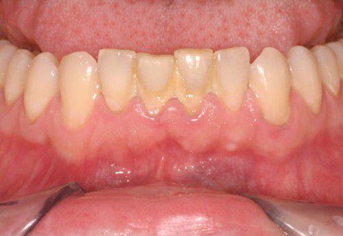 Tự lấy cao răng tại nhà tại sao không