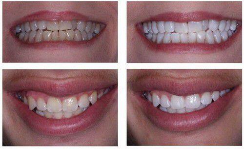 Tẩy trăng răng như thế nào để có hiệu quả tốt ?