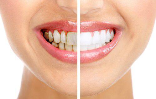 Nguyên nhân và cách chữa trị răng ố vàng