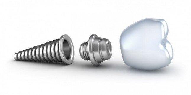 Lợi ích của cấy ghép implant so với bọc răng sứ?