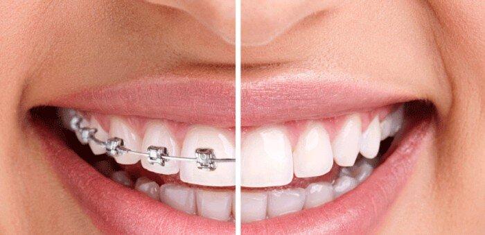 Tổng hợp lợi ích từ việc niềng răng chỉnh nha