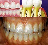 Màu sắc răng miệng nói lên điều gì ?