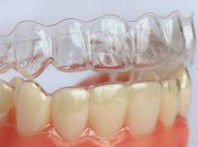 Những điều cần lưu ý trong quá trình niềng răng