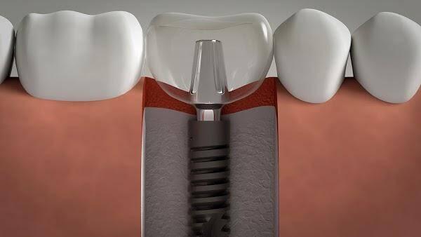 Mất răng vĩnh viễn phải làm sao và cách phục hồi