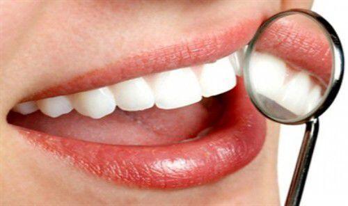 Cách thực hiện tẩy trắng răng bằng đèn plasma