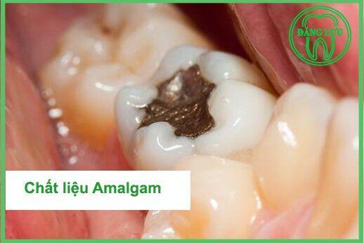 Miếng trám răng Amalgam