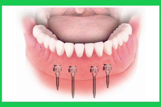 Cắm ghép mini Implant