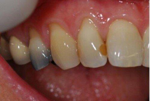 Một số cách để hết đau răng sâu