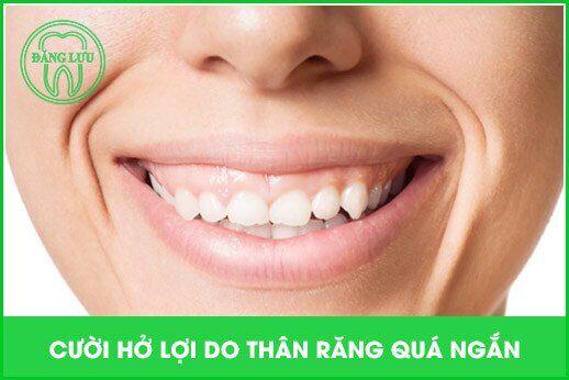 nguyên nhân gây cười hở lợi