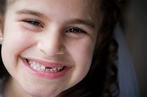 Nghiến răng ảnh hưởng thế nào tới sức khỏe răng miệng ?