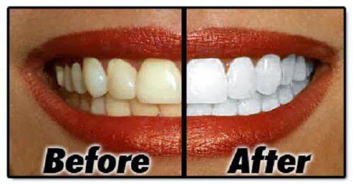 Răng bị xỉn màu có nên tẩy trắng không ?