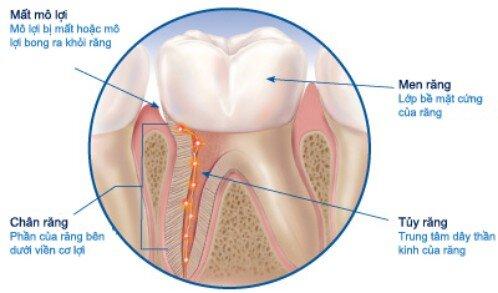 Nguyên nhân khiến răng trở nên nhạy cảm