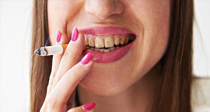 nguyên nhân khiến răng ngả vàng
