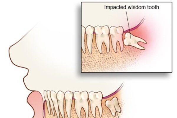 nhổ răng khôn có ảnh hưởng không