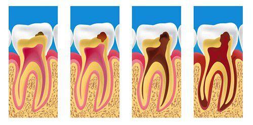 Bài thuốc dân gian chữa các bệnh răng miệng