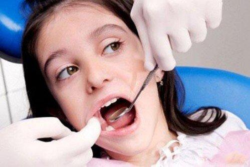 Nhổ răng sữa trẻ em an toàn và không đau