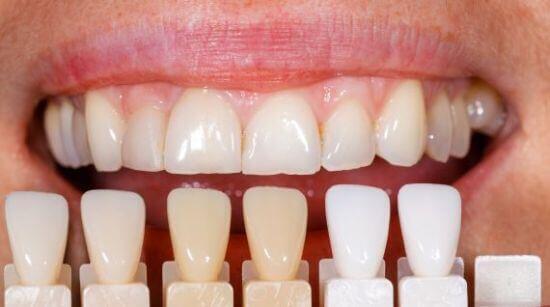 Những biến chứng bọc răng sứ Veneer cần lường trước ?