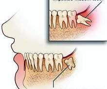 Những căn bệnh nguy hiểm từ chiếc răng khôn mọc lệch