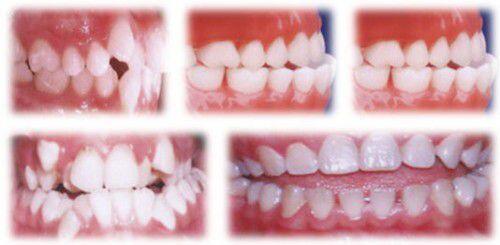 Nguyên nhân và tác hại của răng mọc chen chúc