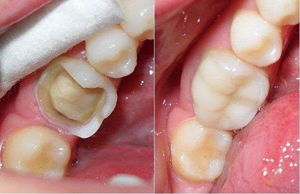 những nguyên nhân làm men răng bị mòn