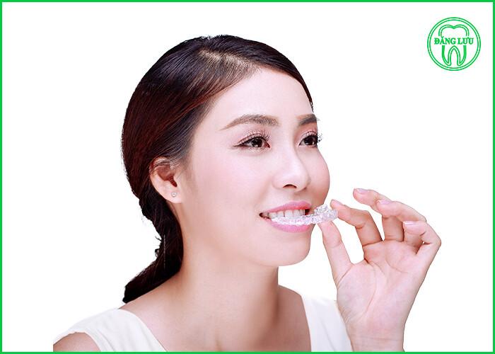 niềng răng có giới hạn độ tuổi nào không