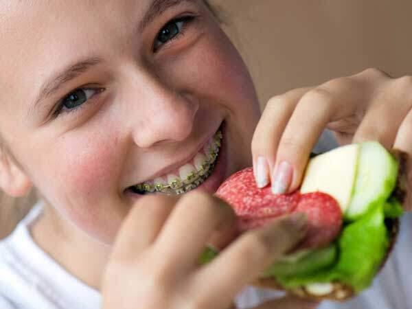 ăn gì khi niềng răng