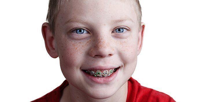 niềng răng chỉnh nha cho trẻ