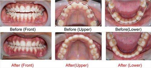 Niềng răng có làm răng yếu đi không ?