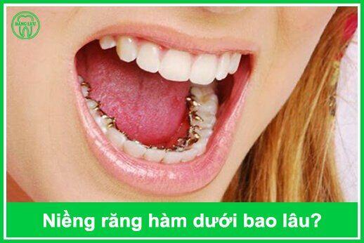 niềng răng hàm dưới bao nhiêu tiền