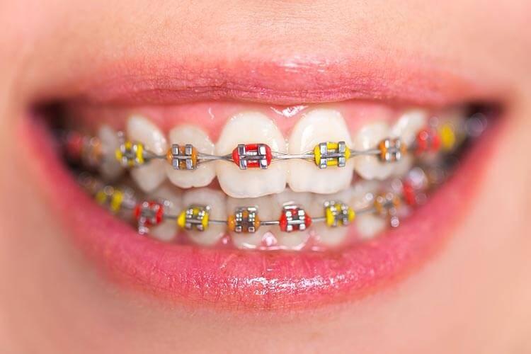 niềng răng hô nướu có nên hay không