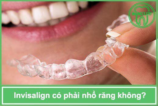 Niềng răng invisalign có phải nhổ răng không?