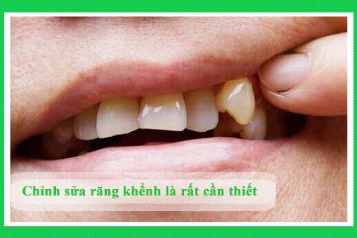 nieng-rang-khenh-1