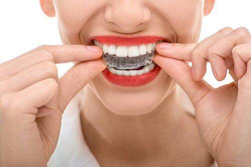 hội thảo niềng răng không mắc cài 3d dể tháo lắp