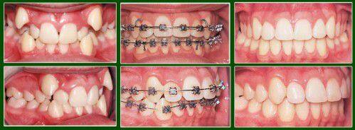 Vì sao răng mọc chen chúc nhau ?