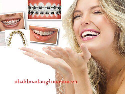 Niềng răng 1 hàm giá bao nhiêu?