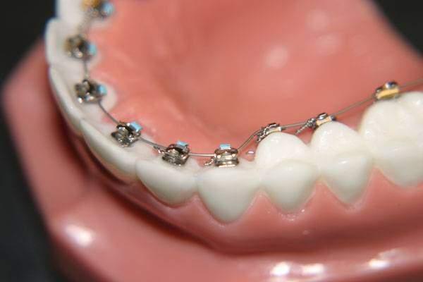 Niềng răng ở đâu tốt tại Hà Nội?