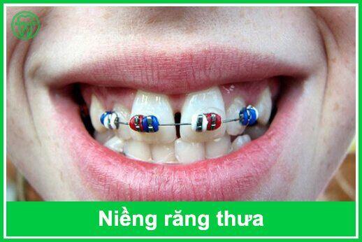 niềng răng bị thưa
